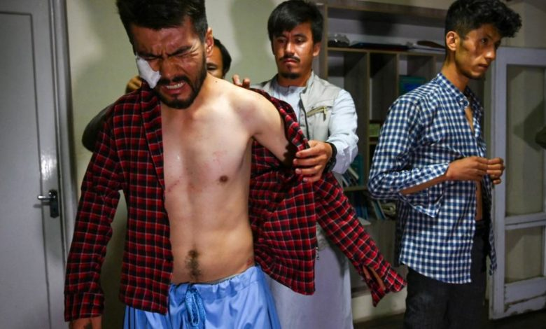 210912084019 afghan journalists beaten super 169 N6oDRCnow-trending